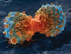 170-Kak-ne-zabolet-rakom